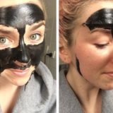 Чёрная маска от прыщей. Фото 1. Одинцово.