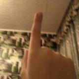 Палец. Фото 1.