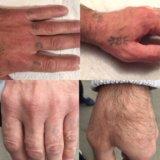 Лазерное удаление татуировок и шрамов