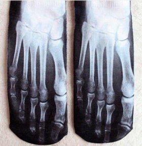 Носочки - рентген