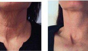 Аппаратное омоложение и подтяжка кожи