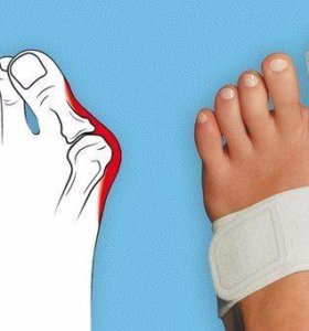 Шина против косточки на ногах