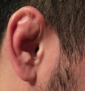 Поломка ушей
