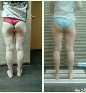 Антицеллюлитный массаж, коррекция фигуры