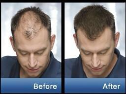 Средство для роста волос [Minoxidil from USA™]