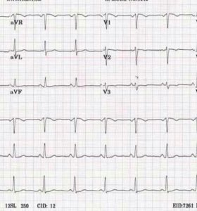 ЭКГ кардиограмма на дому