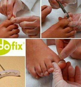 Коррекция вросшего ногтя пластинами podofix