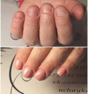 Коррекция ногтевой пластины
