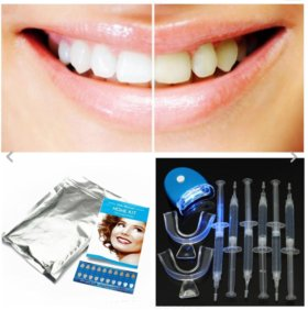Комплекс для домашнего отбеливания зубов