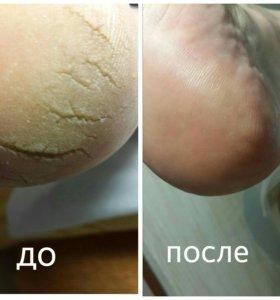 Аппаратный мед. педикюр и маникюр