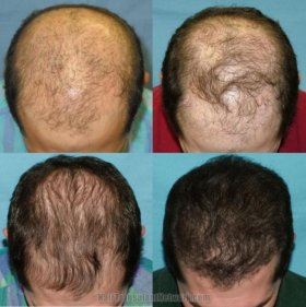 Minoxidil Миноксидил средство для роста волос