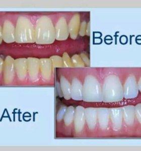 Система BEAUTIFUL для отбеливания зубов