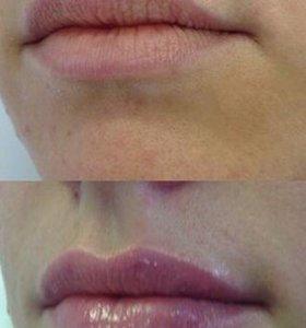 увеличение губ, носогубка, контурная пластика