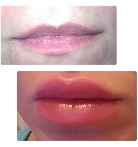 Пухлые губки,коррекция  геалуронка