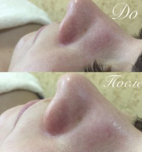 Чистки лица, ламинирование ресниц