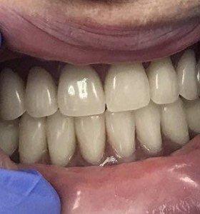 Стоматолог - ортопед с выездом на дом!