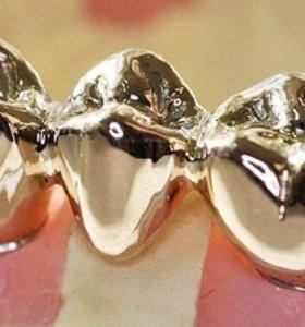 Полировка зубных металлических протезов