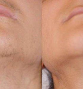 крем депилятор для лица ( усы...)