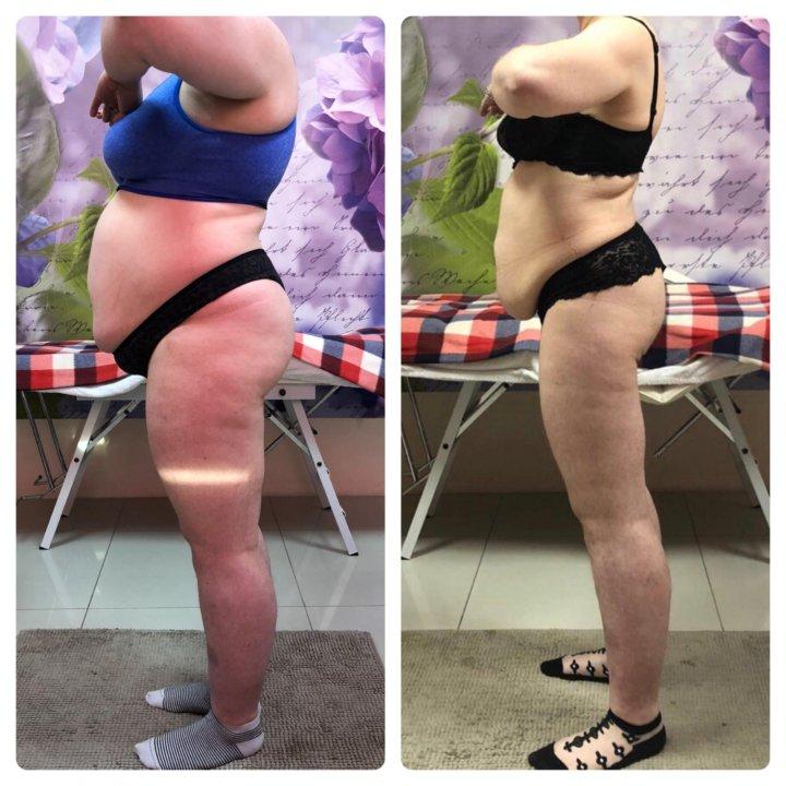 Аппаратное похудение отзывы форум