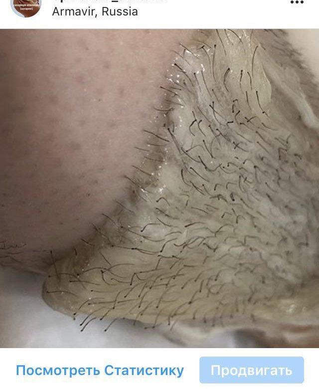 Выщипывание волос в интимном месте подумал