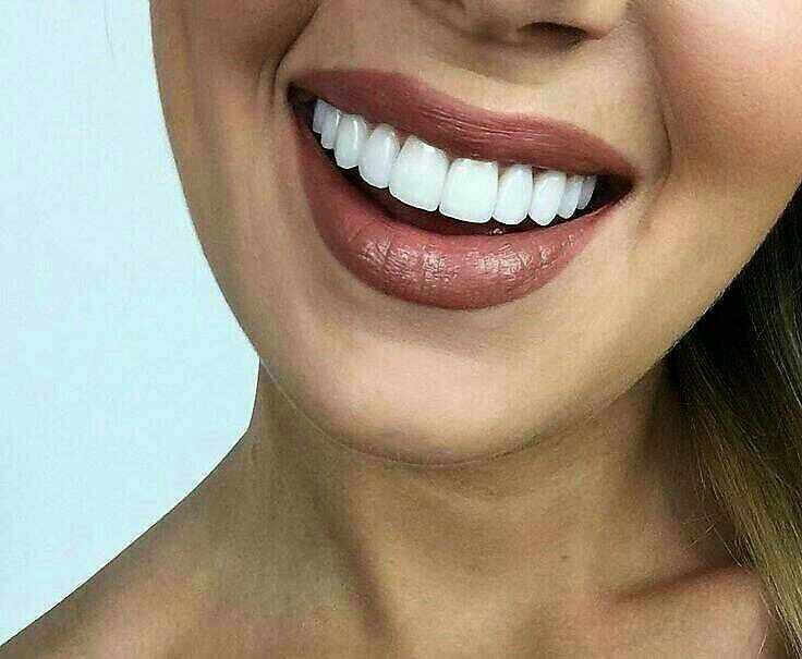 фото зубов с винирами цветоводов